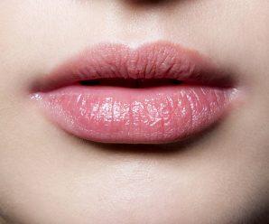 chapped-lips